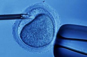 Image of in vitro fertilization